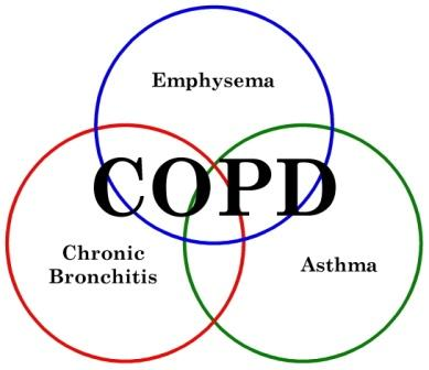 [Image: copd-components99.jpeg]