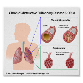 The 3 Causes Of Death Copd-lung-diseases-diagram-poster-ra-dd-df-b-b-a-c-ef-g-a-byvr