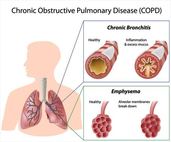 [Image: copd-overview-large87.jpeg]
