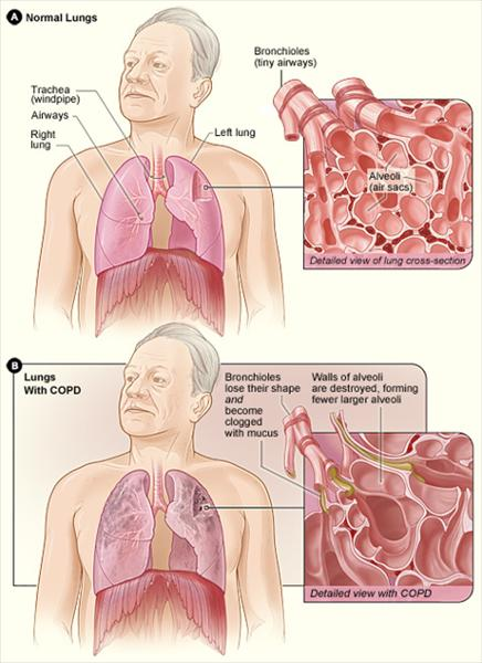 With Chronic Bronchitis and Emphysema Copd