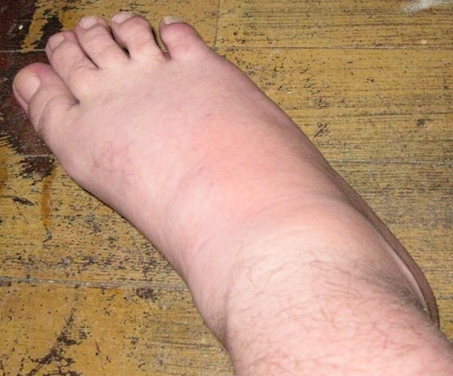 Gout Attacks, Avoid Gout 4 Efficient Suggestions to Avoid Da-b-ae