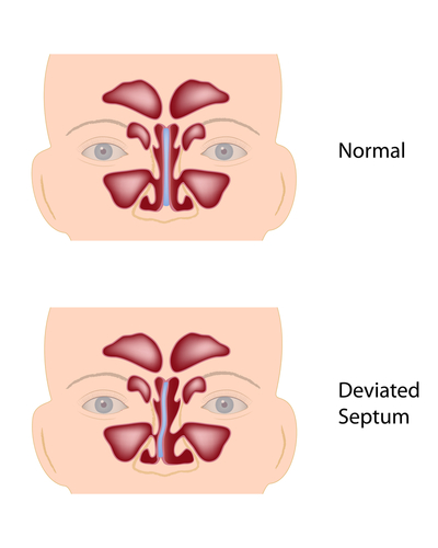Bloody Nose And Sinus Infection and What Is Causing Sphenoid Sinus Infection Deviated-and-normal-septum