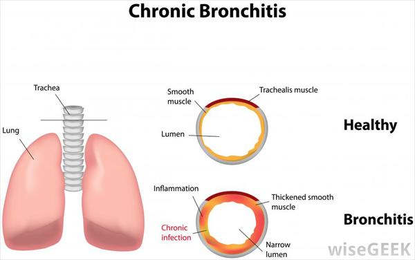 Bronchitis Diagram-of-chronic-bronchitis-against-white32
