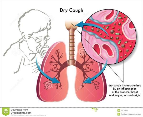 Chronic Dry Cough Dry-cough