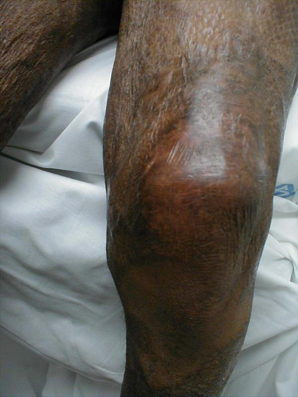 Kidney Stone Pain Reliever and All about Gout Arthritis Extremities-gout-inflamed