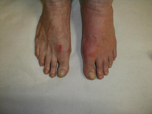 Gout Natural Cure Extremities-gout68