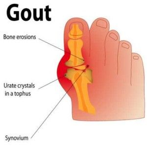 Cure Kidney Stones and Natural Treatments for Gout and Gout Faa-e-ffd-f-ccdc-c-fe