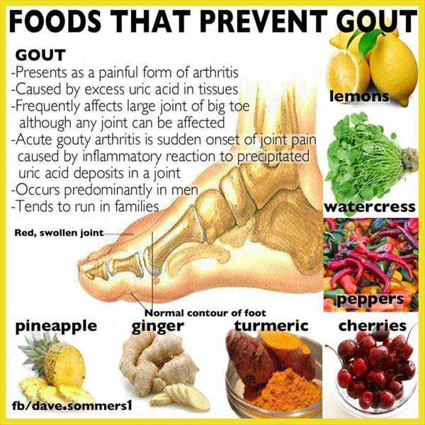 Foods You Should Not Eat With Gout Foods-to-prevent-gout87