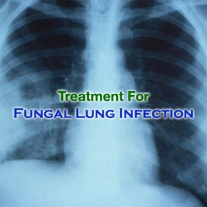 Lung Infections Fungal-lung-infection-treatment-x