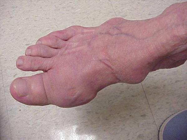 Statins and Gout and Gout Toe Treatment and Neutralizing Gout-Tophi-on-Foot1