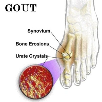 Gout Treatment, Acute Gout Remedy Suggestions to Aid You Gout-arthritis40