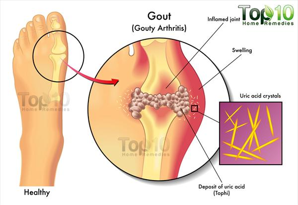 Exercise, Diet, Rest to Fight Gout Gout-diag-opt55