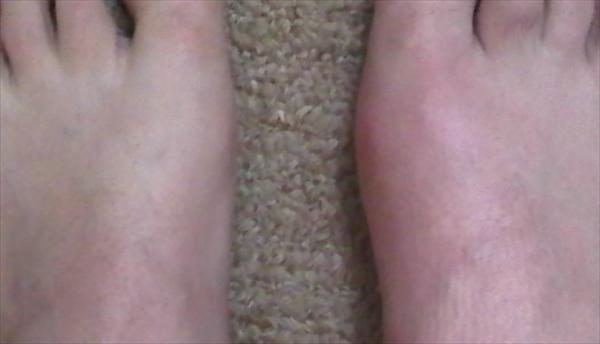 Passing Kidney Stones. about Gout Gout-foot37