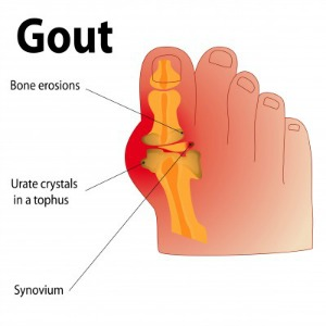 Based Gout Cure Gout-in-big-toe-reduced