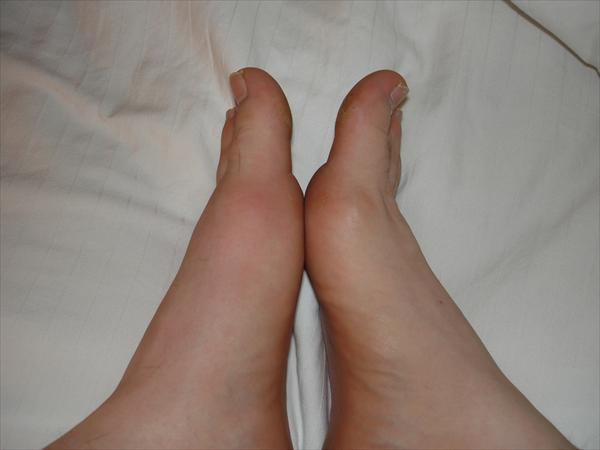 Kidney Stone Diet Foods Gout-in-left-foot-by-travelin-librarian455