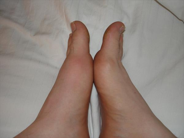 Related or Not to Hyperuricemia? Gout-in-left-foot-by-travelin-librarian64