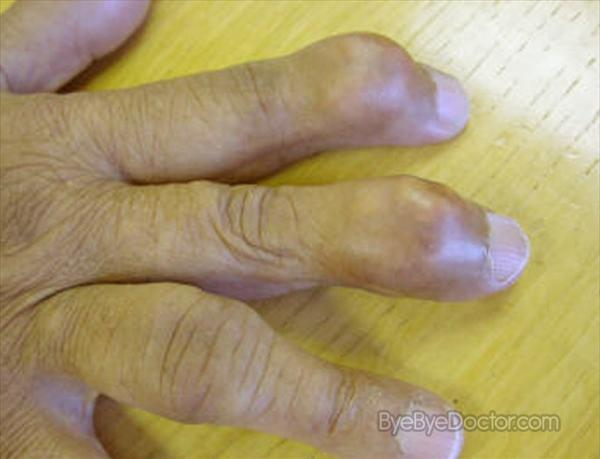 Gout Sufferers Gout-pictures57