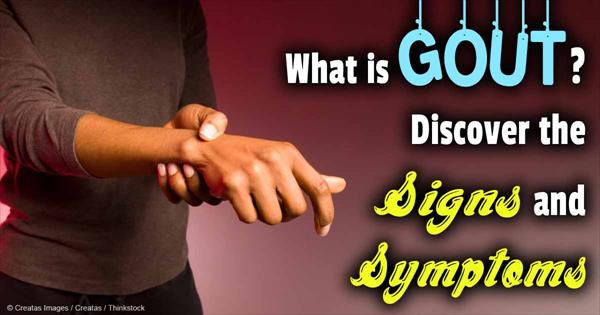 Kidney Stone Cleanse and Gout Symptoms and Know Them Gout-signs-symptoms-fb98