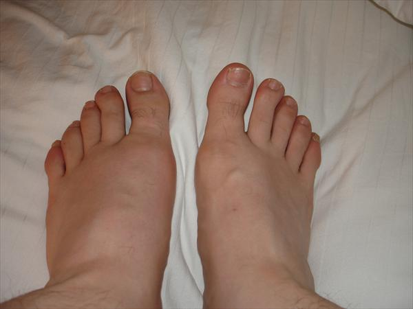 What is Purine Dna and Gout and a Form of Arthritis Gout-swollen-left-foot-by-travelin-librarian50