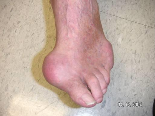 Treating Gout: Understanding Colchicine for Preventing Gout061