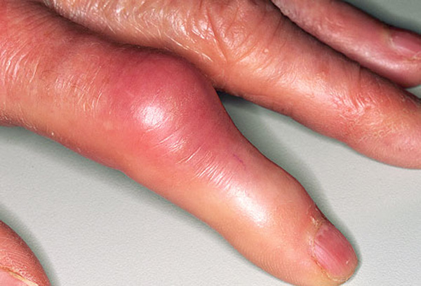 Symptoms of Gout and Its Causes Gout3018