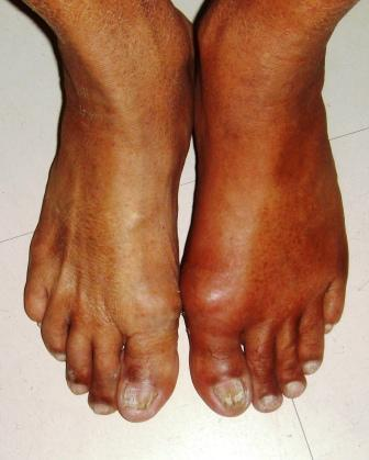 Dealing With Arthritis in the Workplace Gout34
