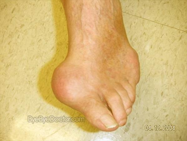 Uric Acid Crystals Joints. Gout and Related Symptoms Gout4488
