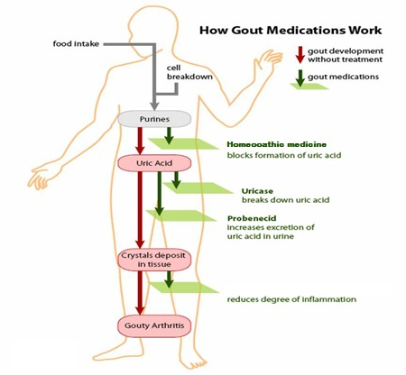Gout Symptoms and How is Gout Treated? Gout6272