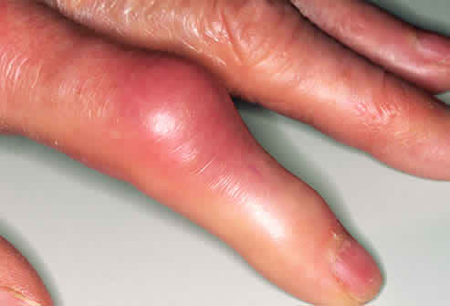 Gout and How to Prevent Arthritis Gout6711