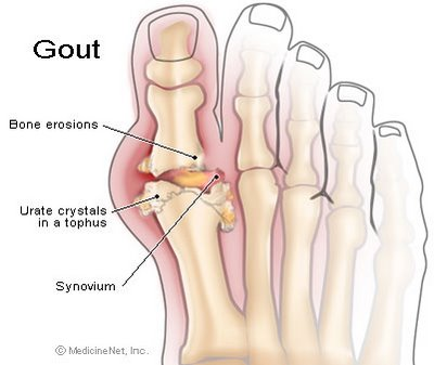 Uric Acid Level and Gout Home Remedy Gout6894