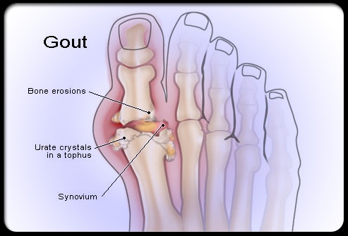 Gout and Diet in Gout Cases Gout771