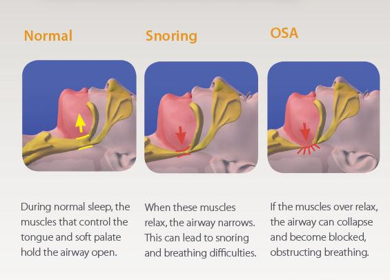 Symptoms of Snoring Graphic-apneoa-snoring-no-BJD