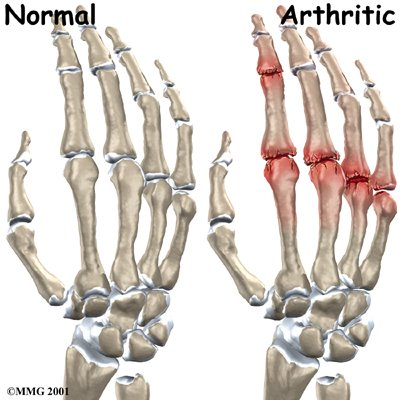 Purines and Arthritis and Herbs and Ayurvedic Remedies, Hand-finger-joint-causes
