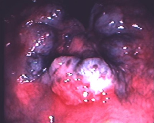 Piles Surgical Treatment and Annoying Annoying Hemorrhoids! Hemorrhoids-pic