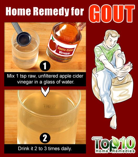 What to Do When Your Foot is Swollen Because of Gout Home-remedy-for-gout