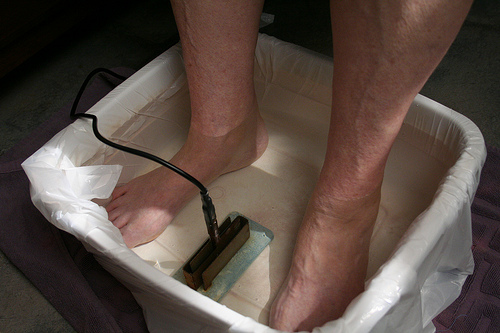 Heat or Cold for Gout: Got Gout? Assault Gout Prior to Gout Homeremediesforgout21