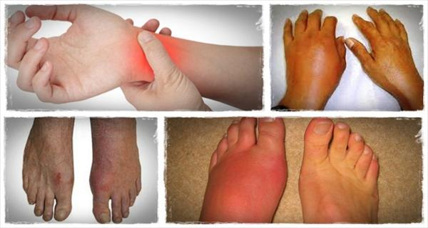 [Image: how-to-get-rid-of-gout-the-gout-remedy-report.jpeg]