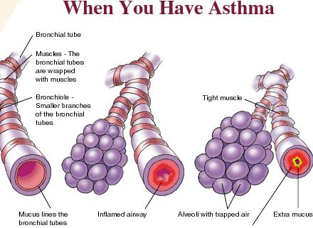 is Asthma Like Bronchitis? How-you-get-asthma8