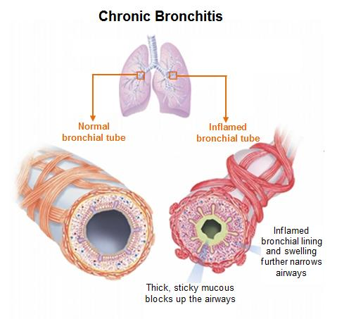 [Image: image-copd-definition-bronchitis65.jpeg]