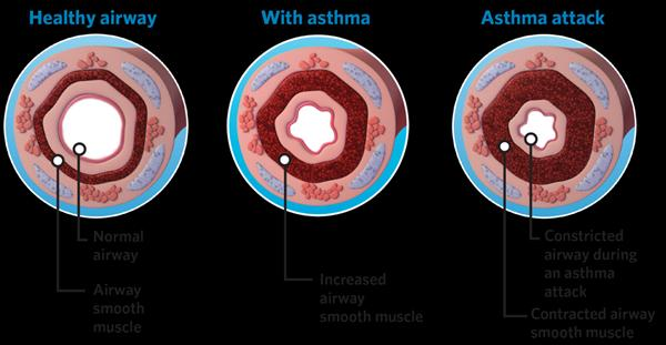 Asthma Bronchitis, We Do Not Notice When We Hyperventilate! Image-img-bt-asthma-airways-hd1