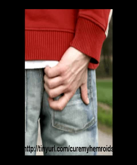 Hemorrhoids Treatment Guide and How to Get Rid of External Image-out-imageId-media-v-YEaWZAP