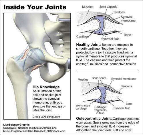 What Cures Gout Joints-inside