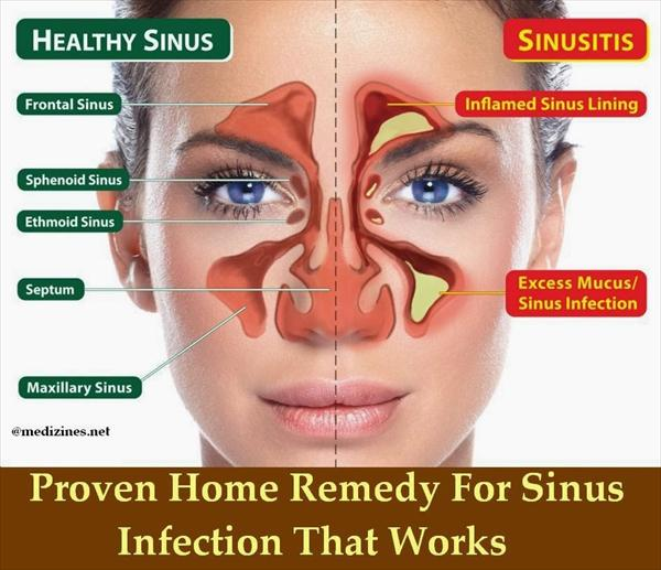 Sinus Treatment Jpg23