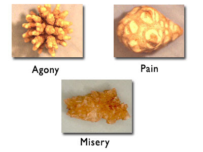 Kidney Stones: 7 Useful Home Remedies for Gout Kidney-stone-B