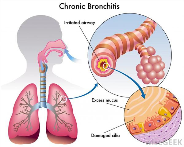 Issues of Bronchitis Labeled-diagram-of-chronic-bronchitis64