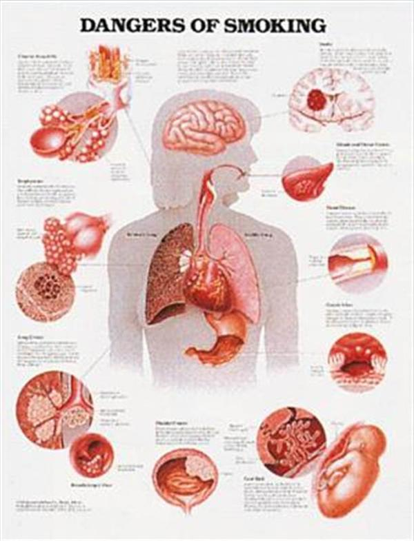 Dangers of Smoking Laminated-dangers-of-smoking-chart-cms-site-products-images-False5
