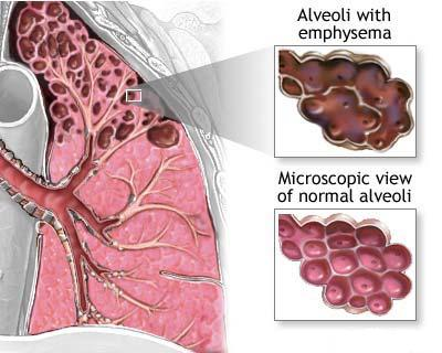 Bronchitis Acute and Chronic: Diseases that Affect  Lung-diseases