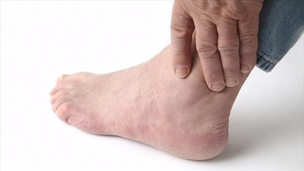 Signs Symptoms Gout and Symptoms of Gout and Its Causes Maxresdefault541