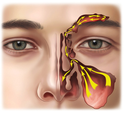 How to Drain You Sinus and How to Treatment Severe Mucociliary-clearance
