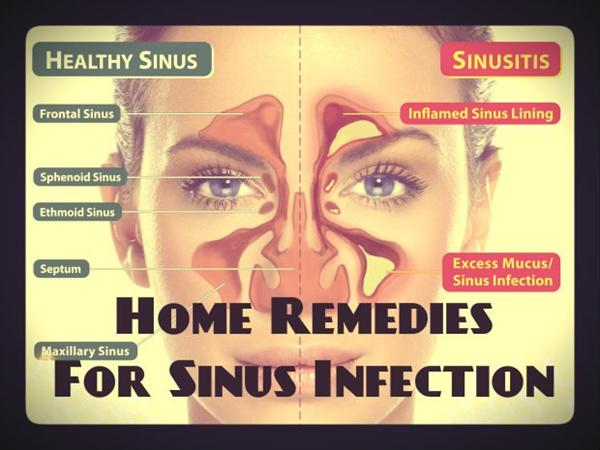 Sinus Surgery and Sinus Infection N250